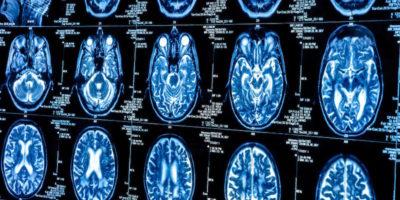 Addiction's Affect on the Brain